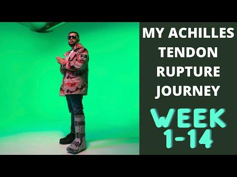 My Achilles Tendon Rupture Journey (Week 1- 14)   Non Op  