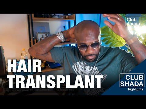 Istanbul, Turkey is a fav destination for hair transplant | Club Shada