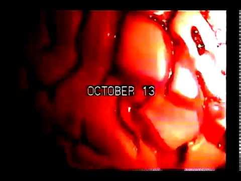 braincloud 2120 soon